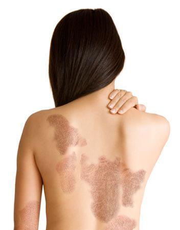 psorilax cremas para psoriasis naturales